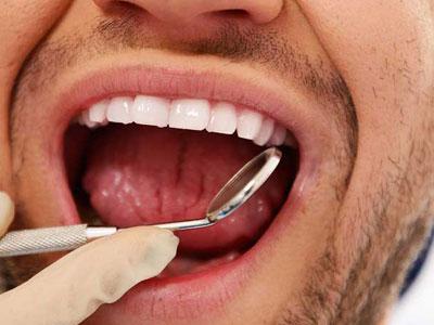 Gum Disease Upland